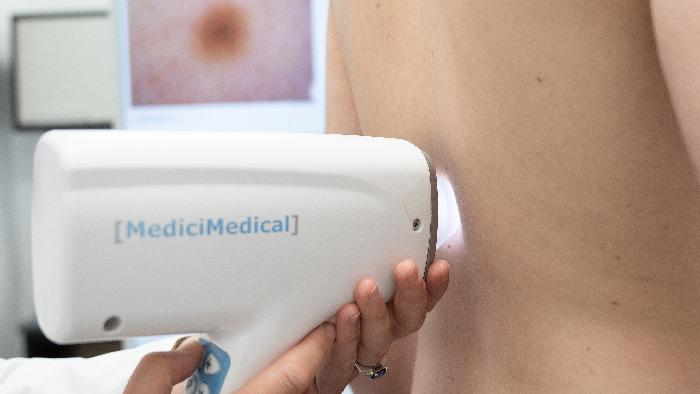 Mappatura nei e dermatoscopia