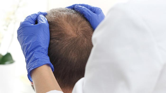 Terapia dell'alopecia