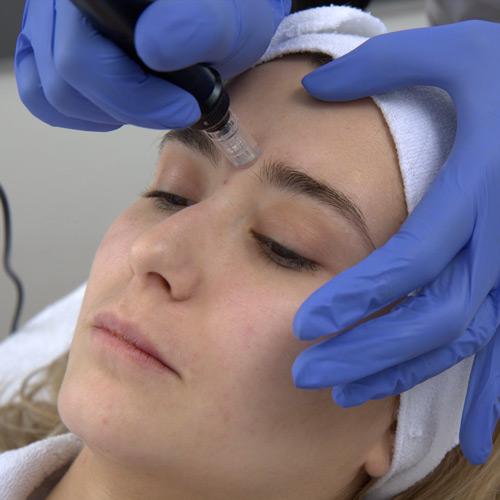 Tonificare viso e collo senza chirurgia
