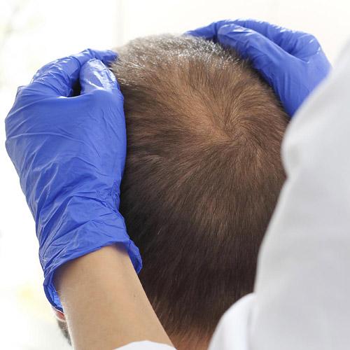 Nuove frontiere per la caduta dei capelli