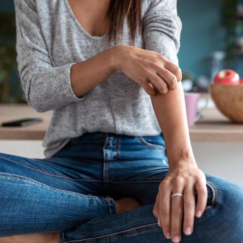 L'alimentazione può migliorare il decorso della psoriasi?