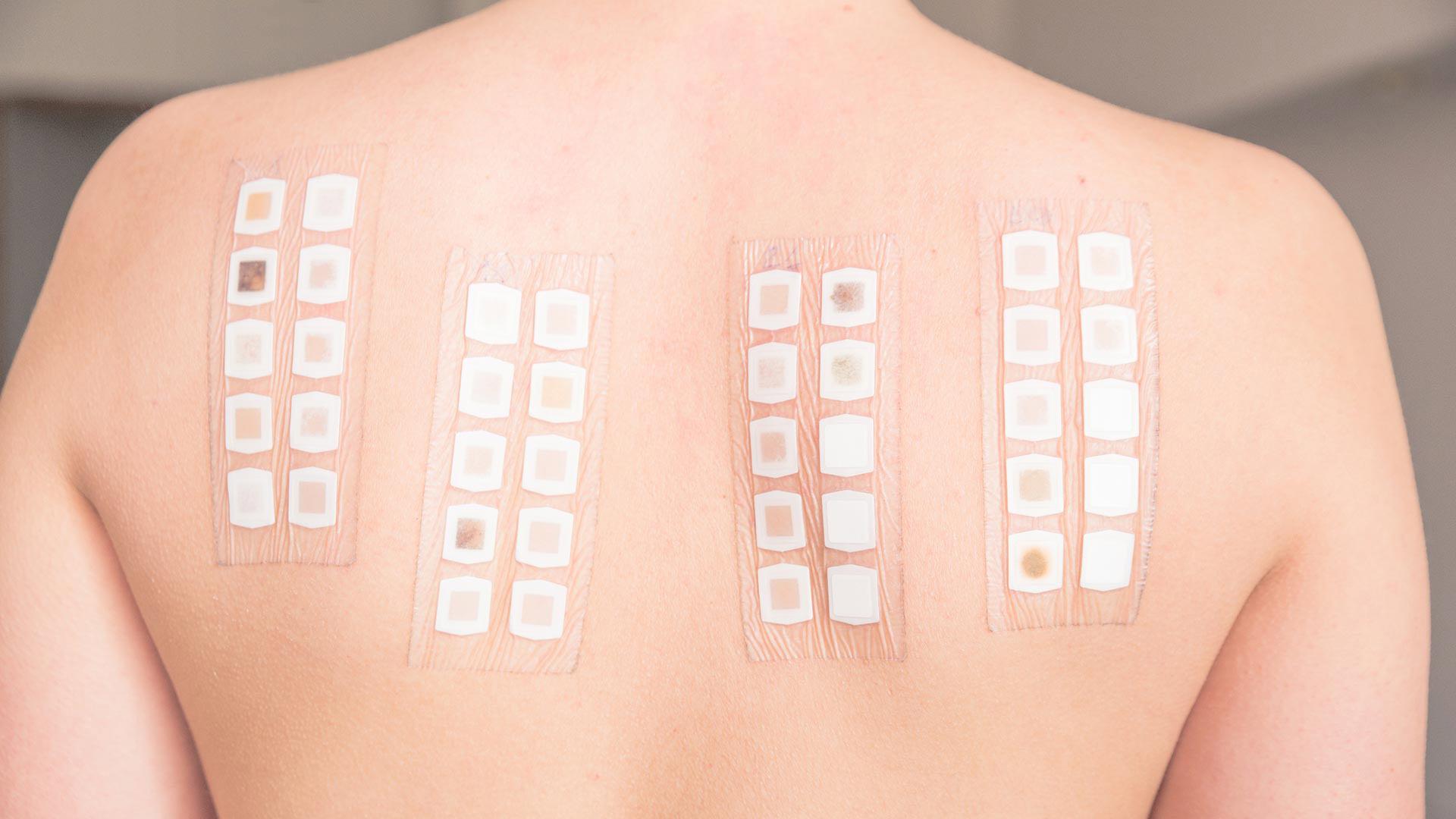 Patch test per allergie dermatologiche